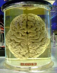 http://douglawrence.files.wordpress.com/2010/06/human_brain.jpg?w=237&h=300
